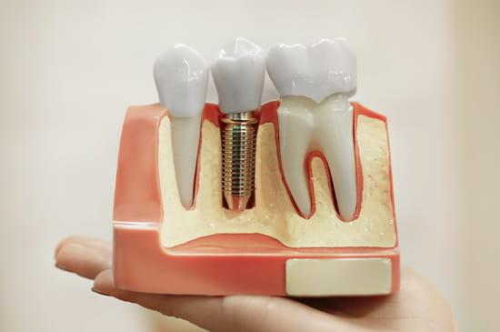 失ってしまった歯を補う治療法の一つです