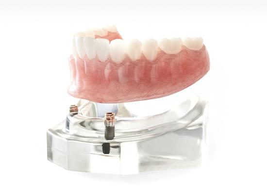 入れ歯をインプラントで固定する方法をご存知ですか?